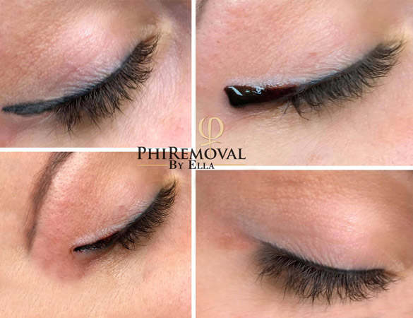 Permanent Make-Up Removal